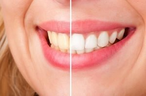 Teeth Whitening | Dentist Preston