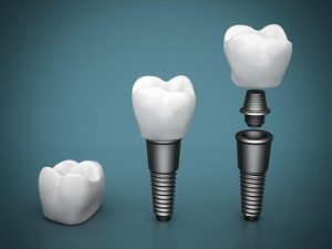 Dental Implants | Dentist Preston