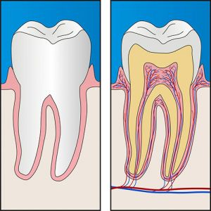 Root Canal Treatment | Dentist Preston
