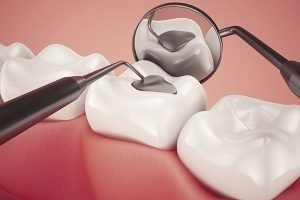 Lost Fillings, Crown Or Inlay/Onlay | Dentist Preston