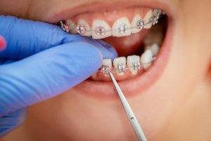 Traditional Braces | Dentist Preston