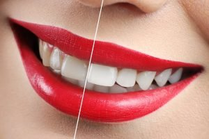 Preston Dentist tips on Teeth Whitening